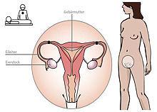 Beschriftete Grafik zeigt die Stellen, an der bei einer Sterilisation die Eileiter verschlossen bzw. verschmolzen werden