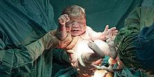 Baby wird per Kaiserschnitt auf die Welt gebracht