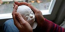 Gipsmaske eines verstorbenen Frühgeborenen