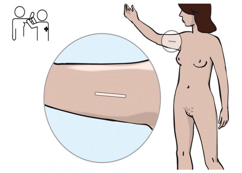 Wie eine plastische Operation der Brust der Frauen machen
