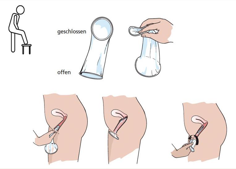 Penisring Richtig Anziehen